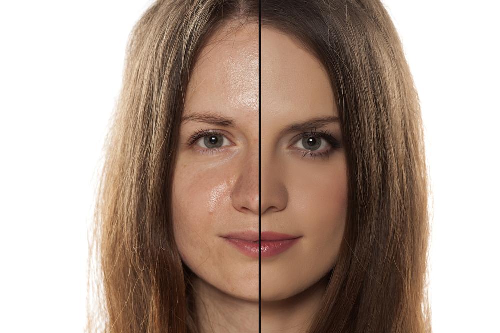 Minimizar los poros dilatados