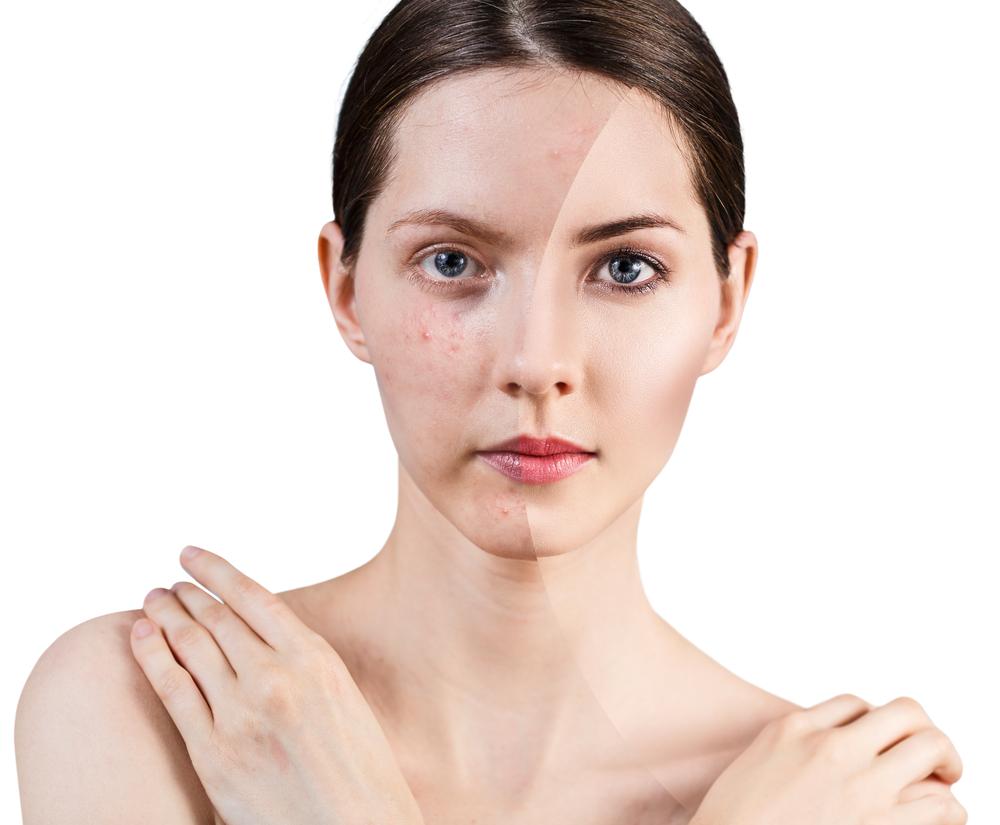Sobre el acné: lo que tu esteticista no haría