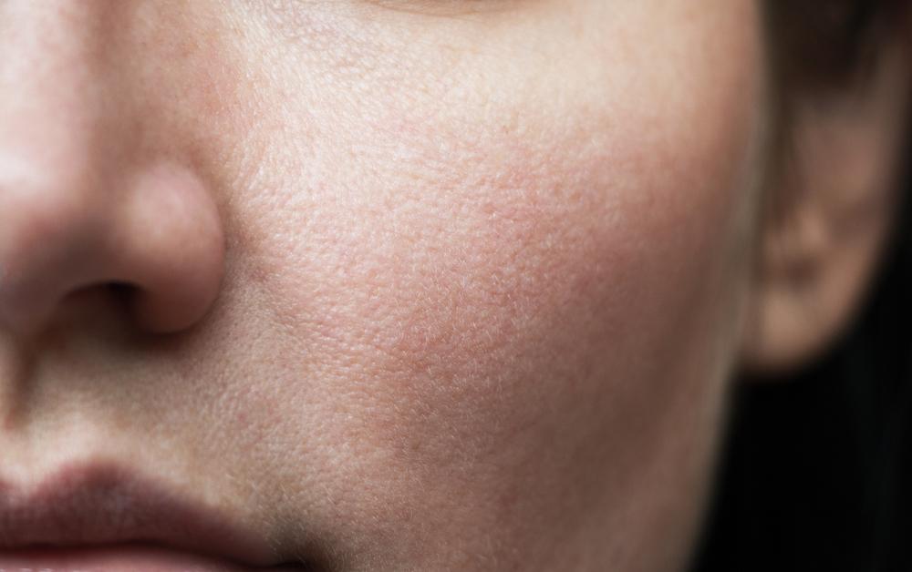 Cómo afectan las emociones a la piel
