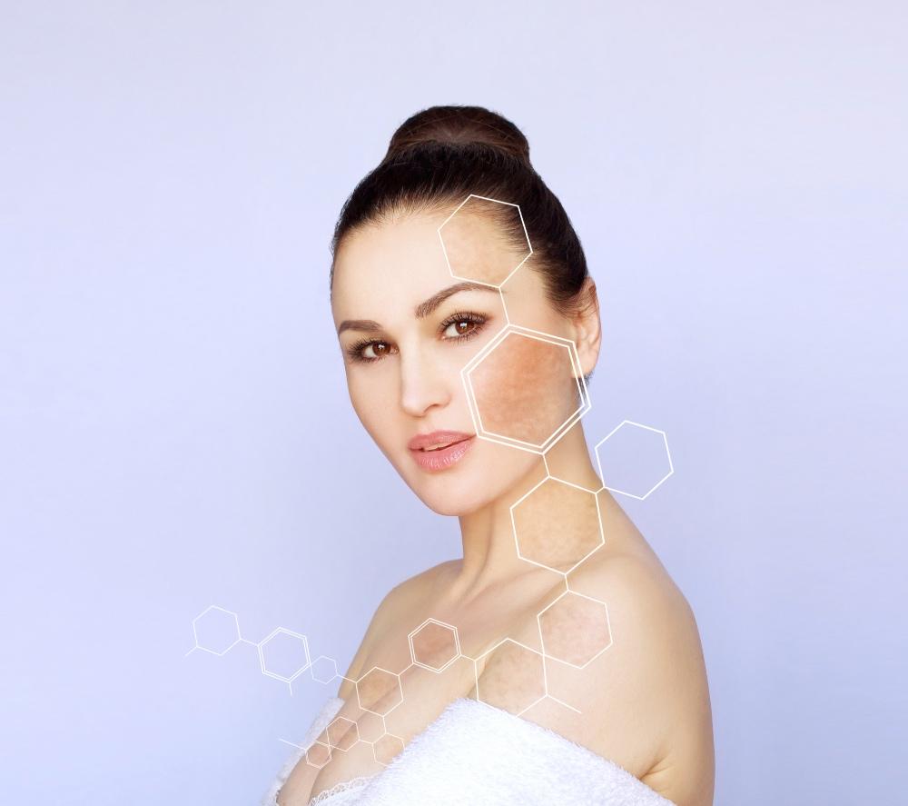 Mujer con hiperpigmentación en la piel de la cara